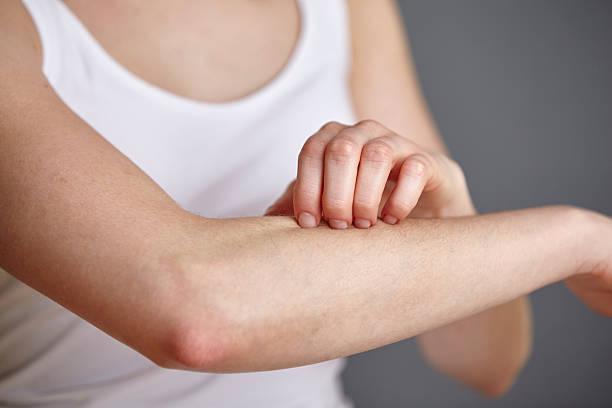 Jeune femme à la peau sensible qui souffre de démangeaisons