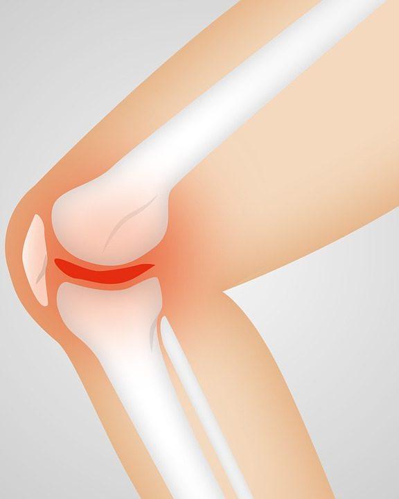 Comment soulager les douleurs de l'arthrose du genou ?